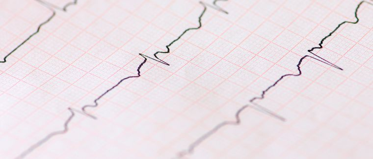 Arztbesuch wegen Wechseljahresbeschwerden-Was kommt auf mich zu?